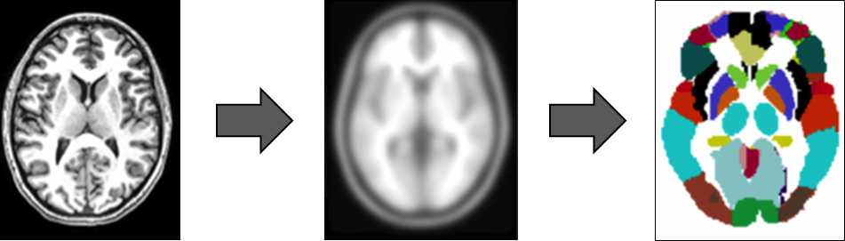 three images of the brain